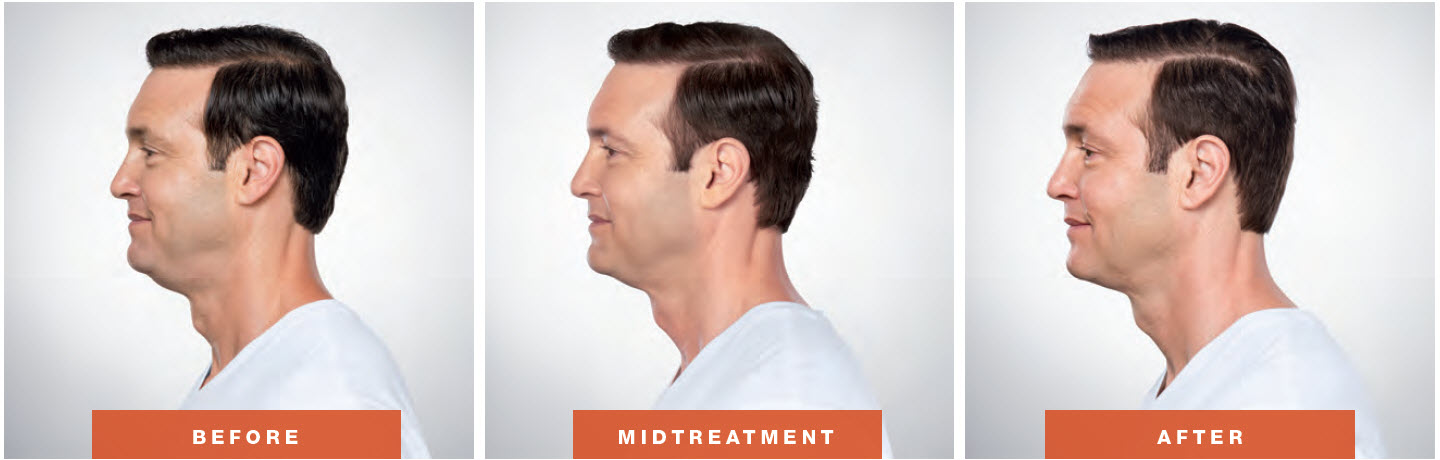 Kybella Men Before After