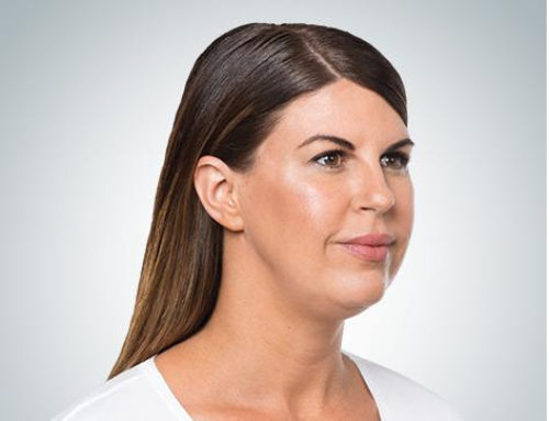 Is Double Chin Surgery Right for Me?