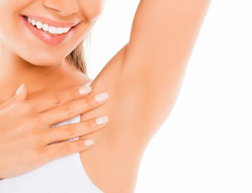 How Many Laser Hair Removal Treatments Are Needed for Underarms?
