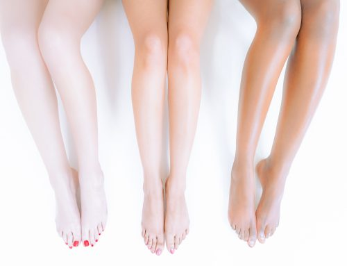 What to Expect from Laser Hair Removal